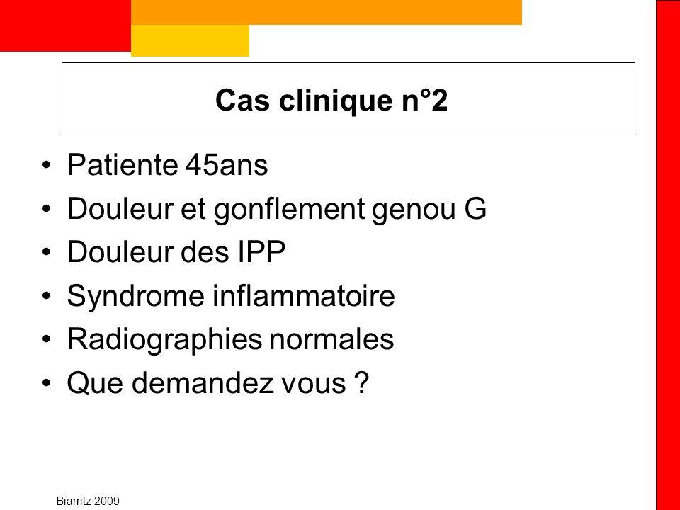 Douleur et gonflement genou G Douleur des IPP Syndrome inflammatoire