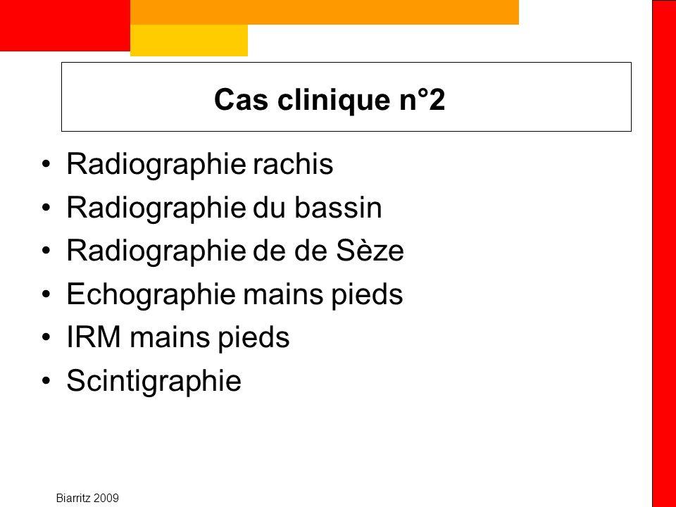 Radiographie du bassin Radiographie de de Sèze Echographie mains pieds