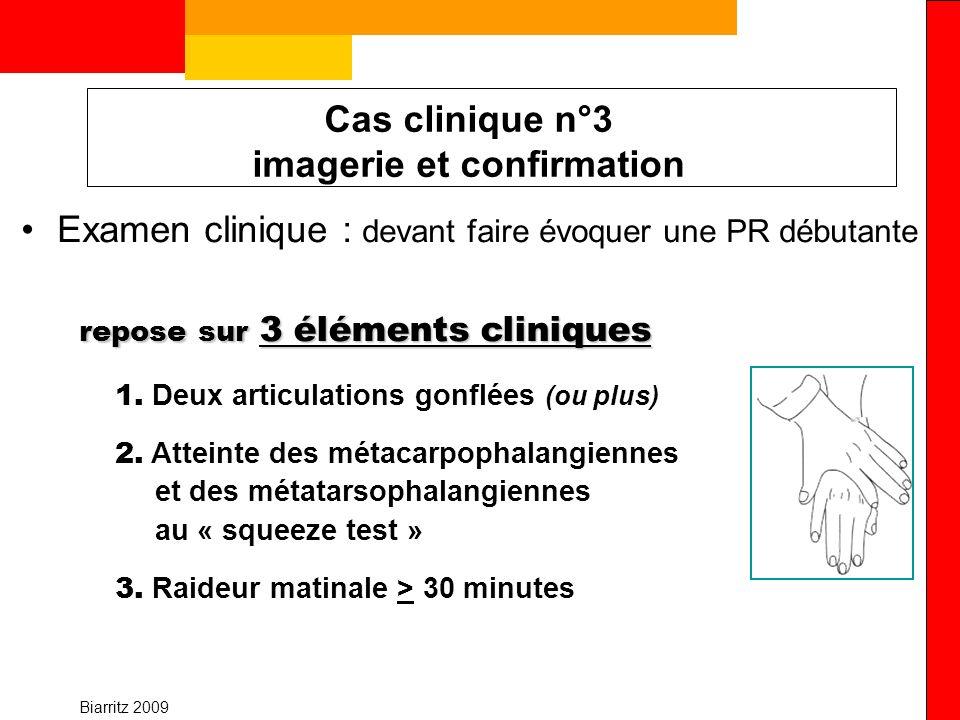 Cas clinique n°3 imagerie et confirmation