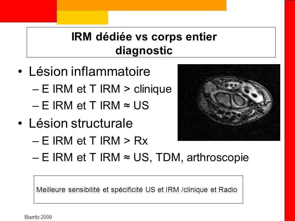 IRM dédiée vs corps entier diagnostic