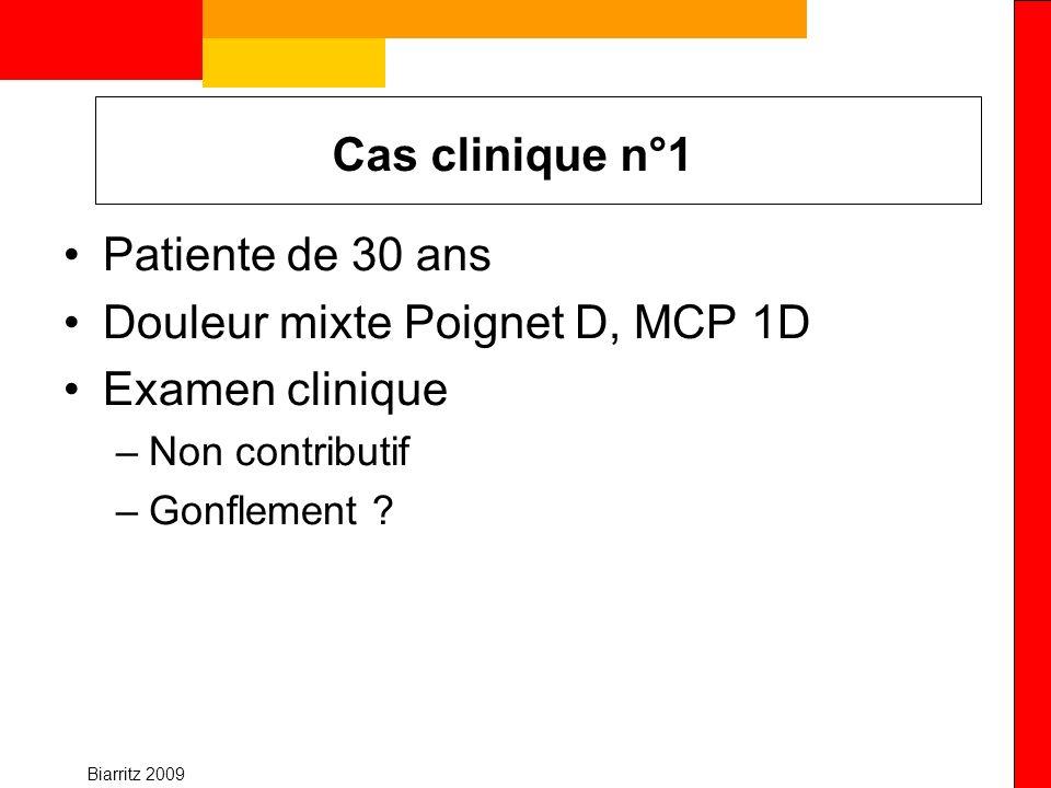 Douleur mixte Poignet D, MCP 1D Examen clinique