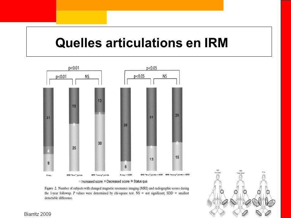Quelles articulations en IRM