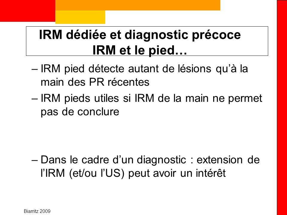 IRM dédiée et diagnostic précoce IRM et le pied…