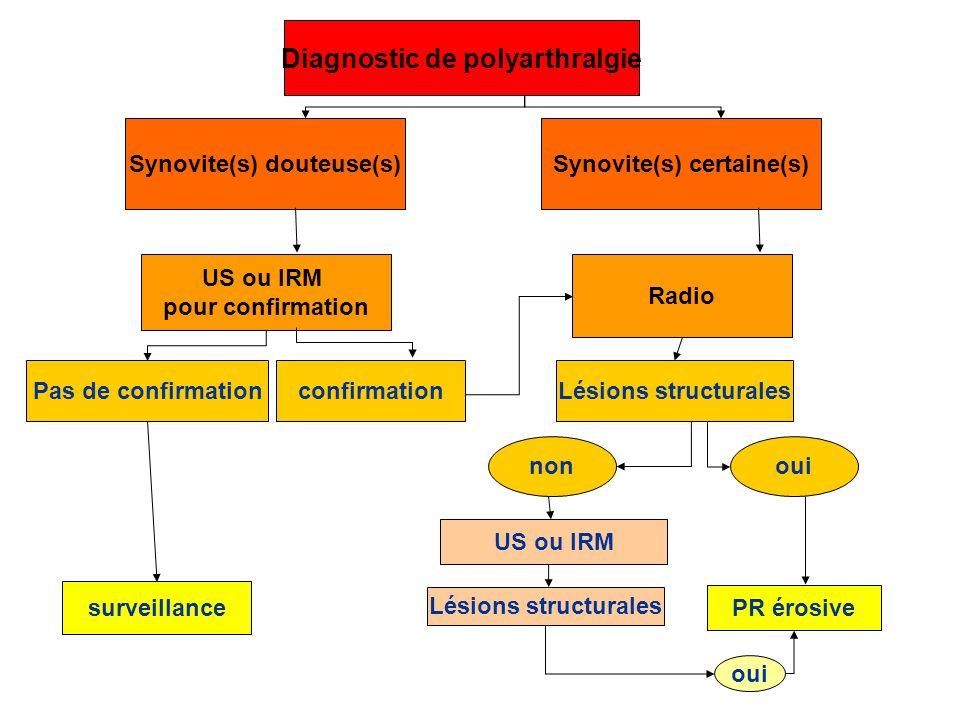 Diagnostic de polyarthralgie