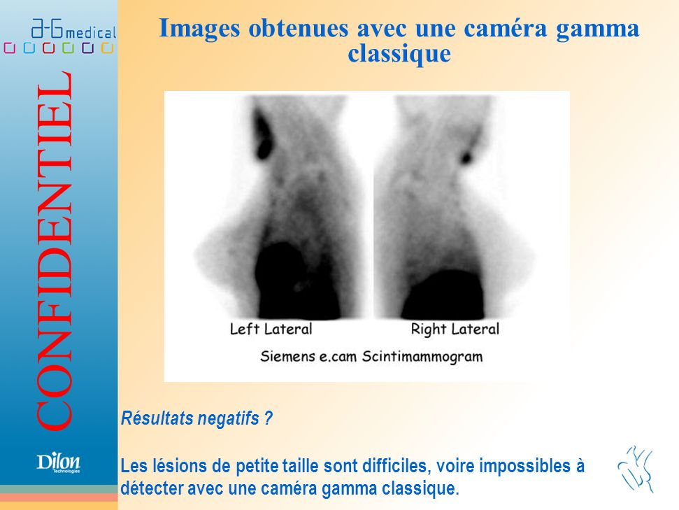 Images obtenues avec une caméra gamma classique
