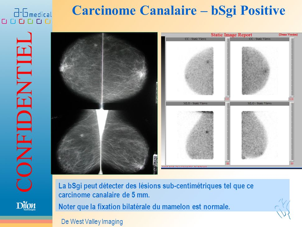Carcinome Canalaire – bSgi Positive