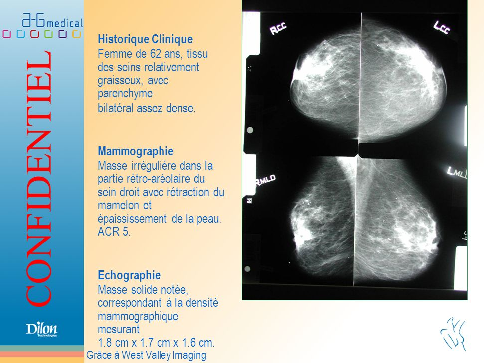 Historique CliniqueFemme de 62 ans, tissu des seins relativement graisseux, avec parenchyme. bilatéral assez dense.
