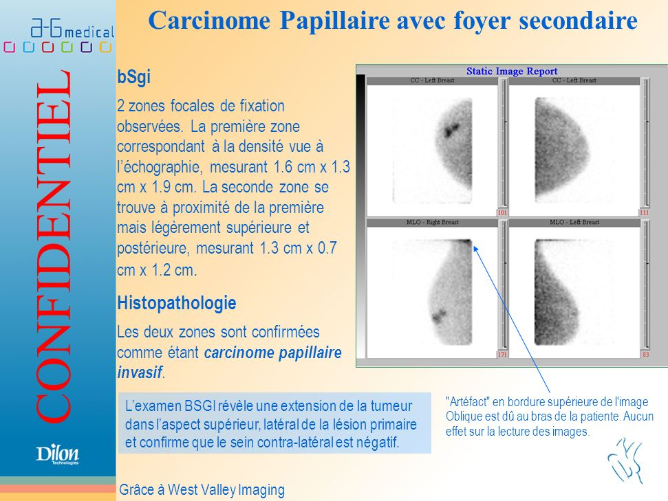 Carcinome Papillaire avec foyer secondaire