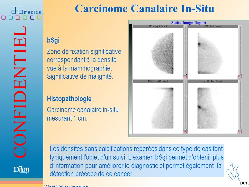 Carcinome Canalaire In-Situ
