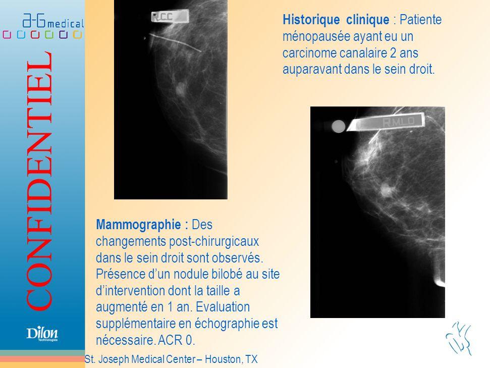 Historique clinique : Patiente ménopausée ayant eu un carcinome canalaire 2 ans auparavant dans le sein droit.