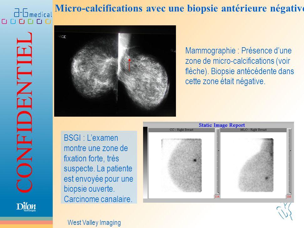 Micro-calcifications avec une biopsie antérieure négative