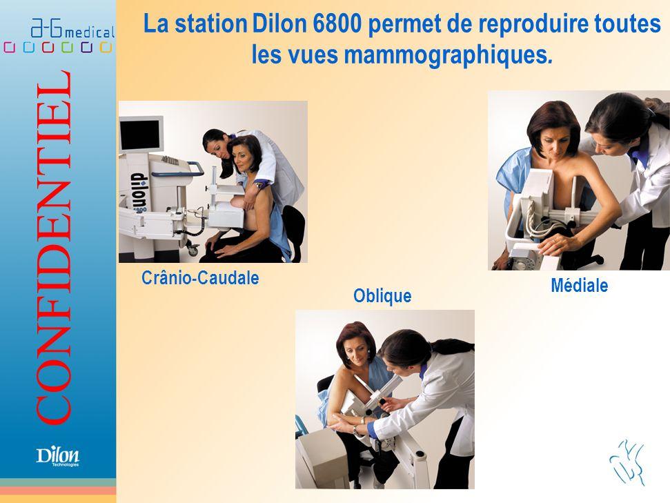 La station Dilon 6800 permet de reproduire toutes les vues mammographiques.