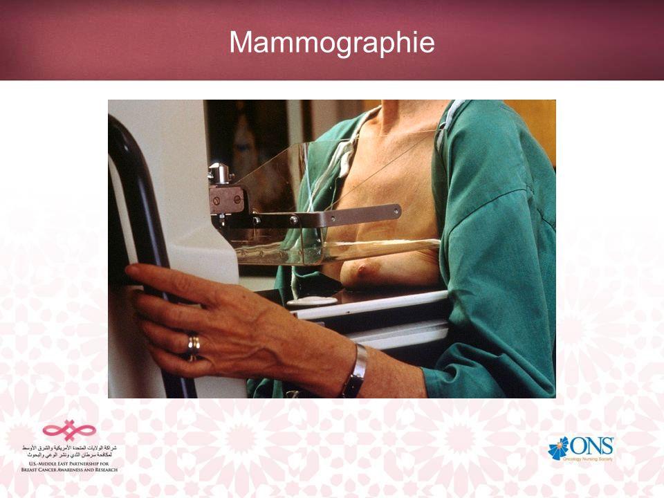 Mammographie Compression du sein pour obtenir une vue optimale.