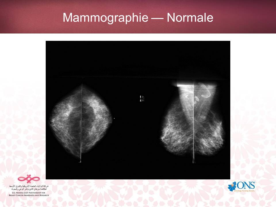 Mammographie — Normale