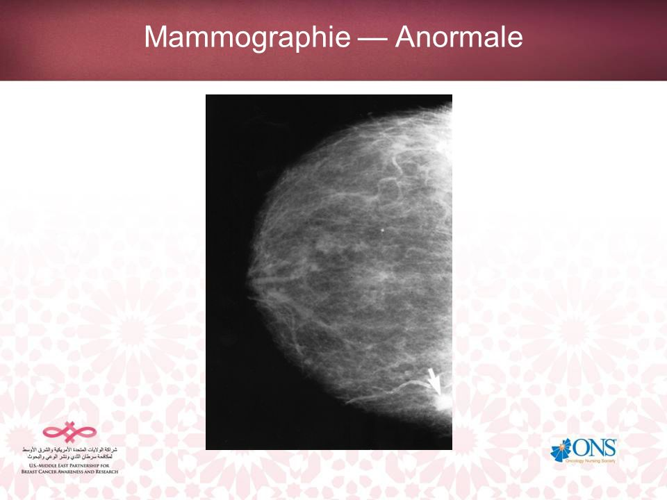 Mammographie — Anormale