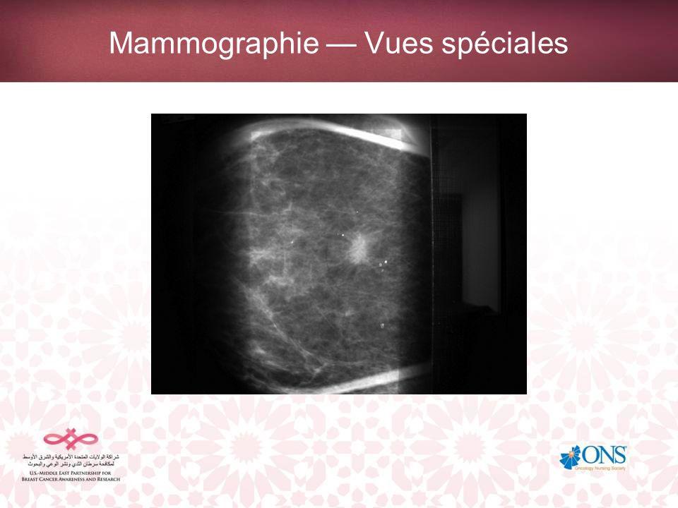 Mammographie — Vues spéciales