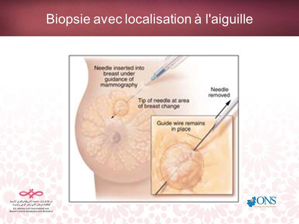 Biopsie avec localisation à l aiguille