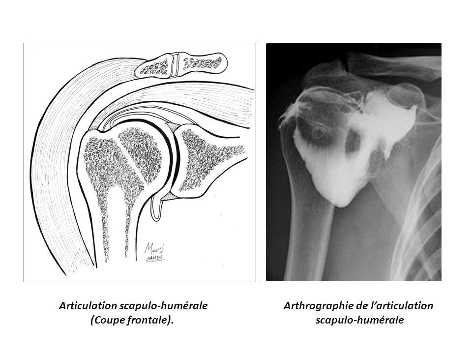 Articulation scapulo-humérale Arthrographie de l'articulation