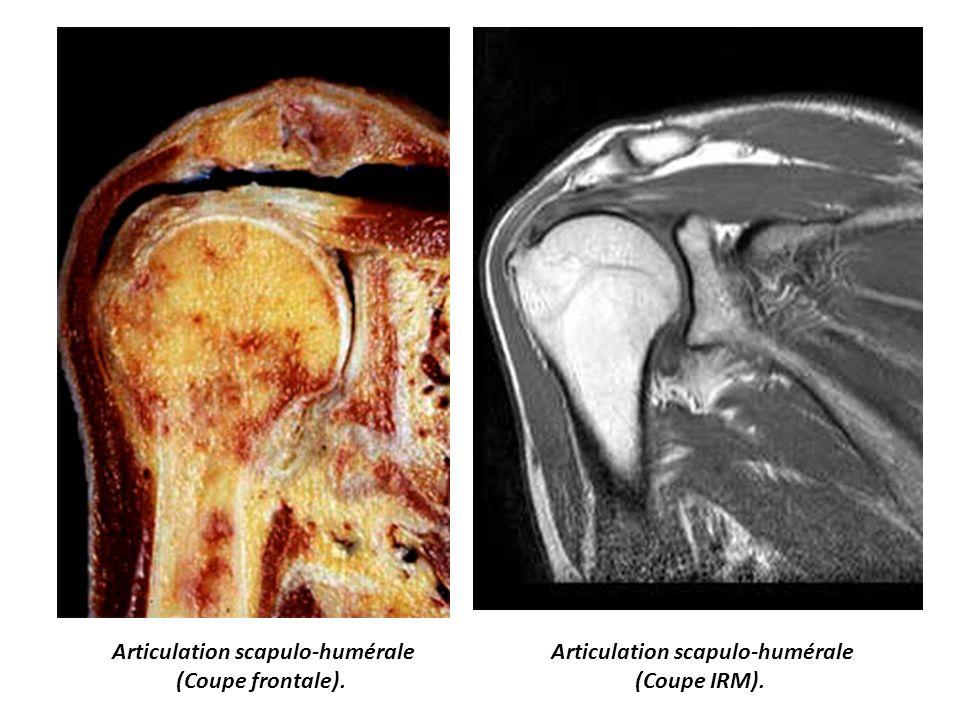 Articulation scapulo-humérale Articulation scapulo-humérale