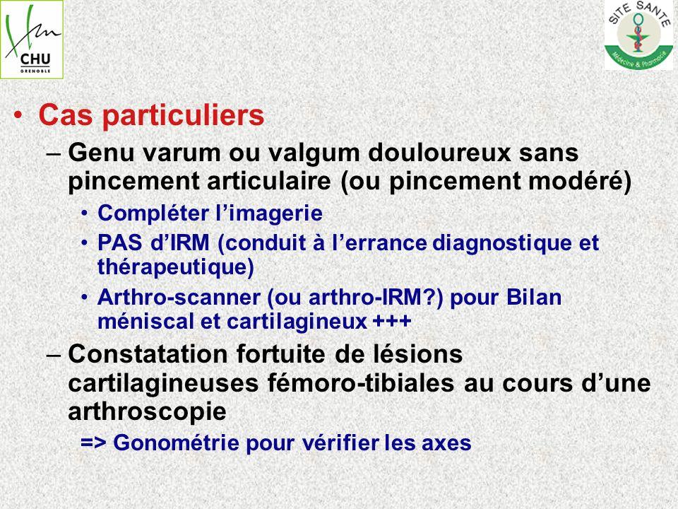 Cas particuliers Genu varum ou valgum douloureux sans pincement articulaire (ou pincement modéré) Compléter l'imagerie.