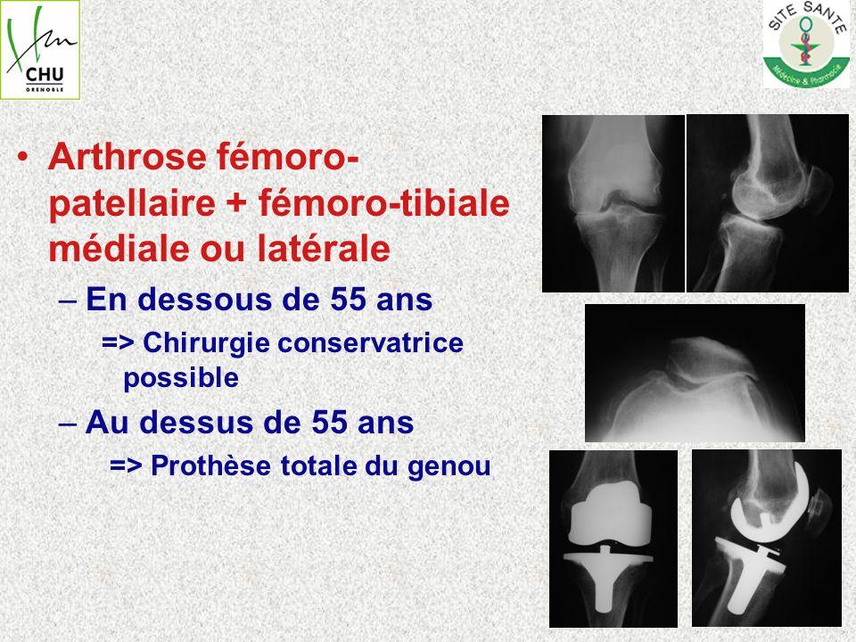Arthrose fémoro-patellaire + fémoro-tibiale médiale ou latérale
