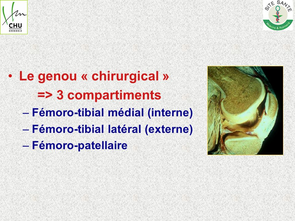 Le genou « chirurgical » => 3 compartiments