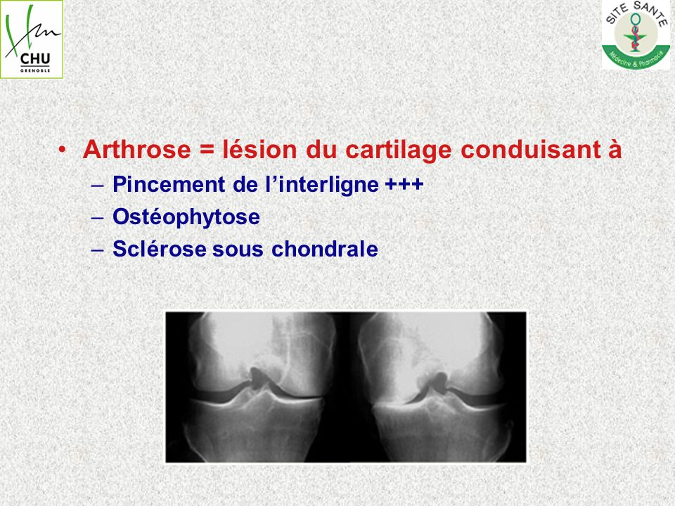 Arthrose = lésion du cartilage conduisant à