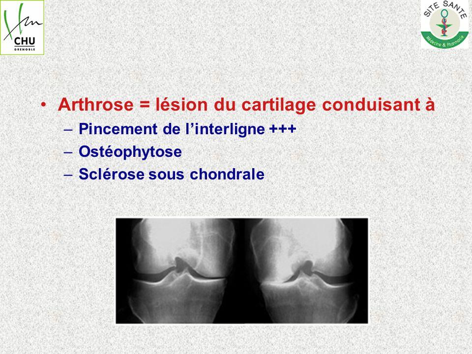 Arthrose = lésion du cartilage conduisant à