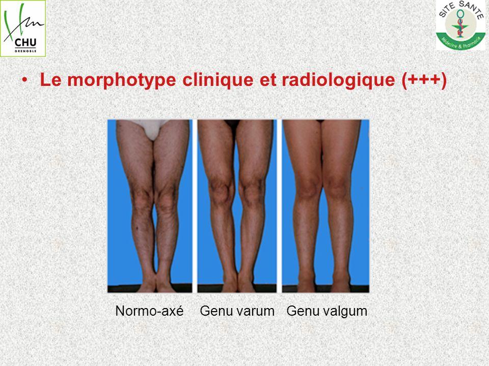 Le morphotype clinique et radiologique (+++)