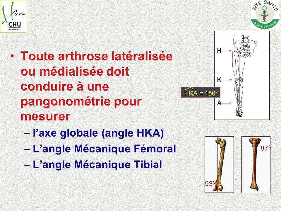 Toute arthrose latéralisée ou médialisée doit conduire à une pangonométrie pour mesurer
