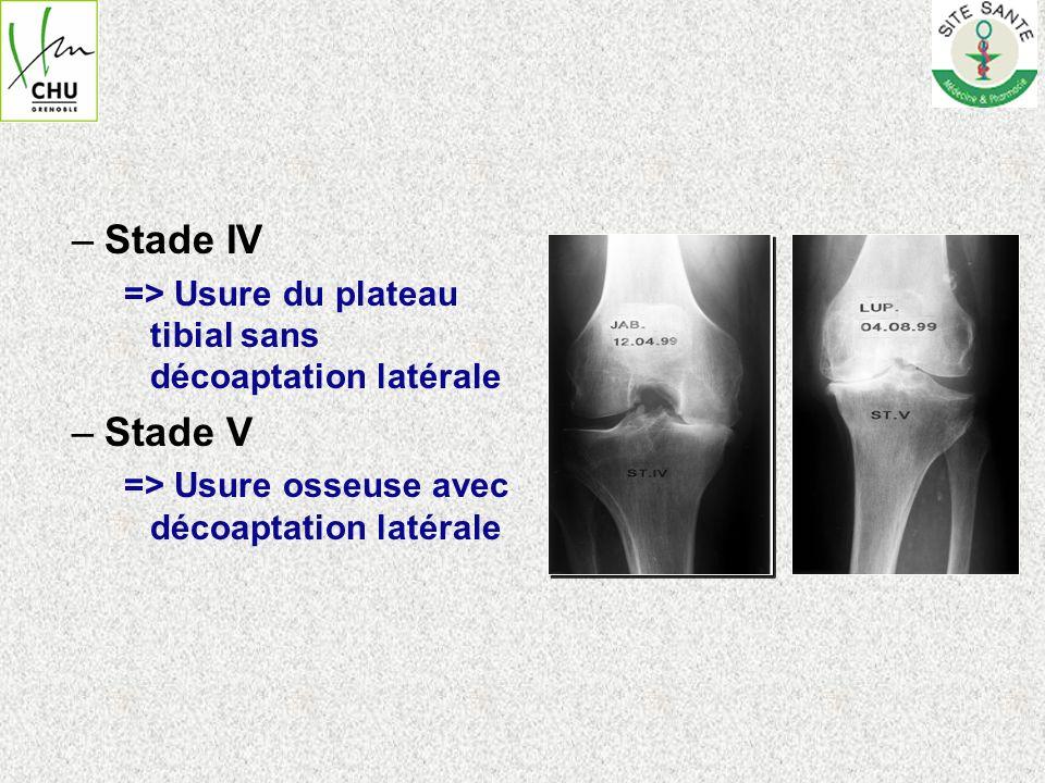 Stade IV => Usure du plateau tibial sans décoaptation latérale.