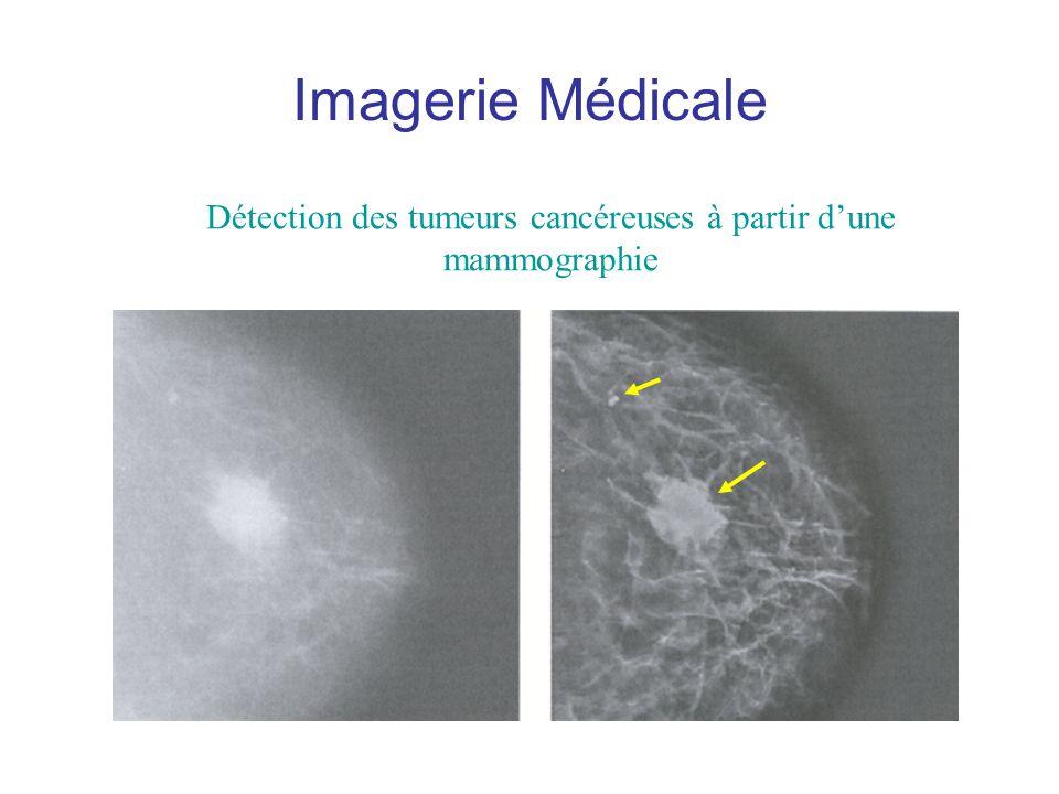 Détection des tumeurs cancéreuses à partir d'une mammographie