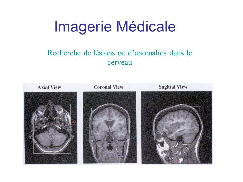 Recherche de lésions ou d'anomalies dans le cerveau