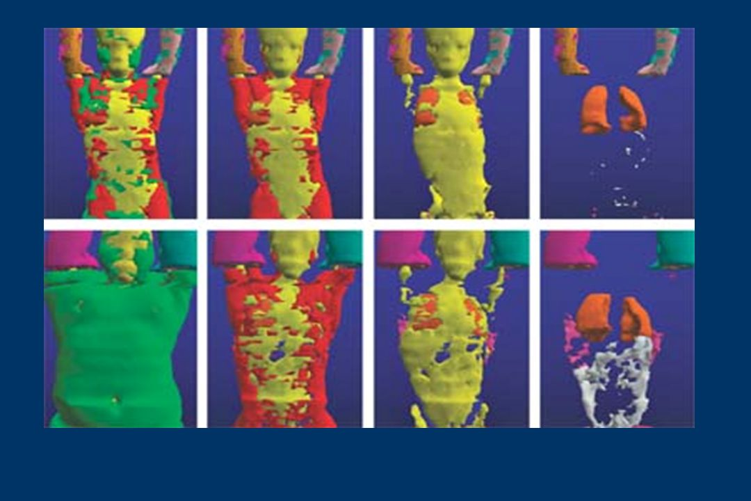 LAYERED Whole-body images such as these allow measurements of total body fat, among other parameters. On the far left, images show all the tissue compartments, each represented by a unique color, for a lean person (top) and an overweight person (bottom). The next images in each series show what s left after removal of subcutaneous adipose tissue (green), muscle tissue (red), and residual tissue (yellow). In the rightmost images, visceral adipose tissue is shown in gray and intramuscular adipose tissue in pink. Images were composed computationally from magnetic resonance imaging scans of cross-sectional slices of a whole body.