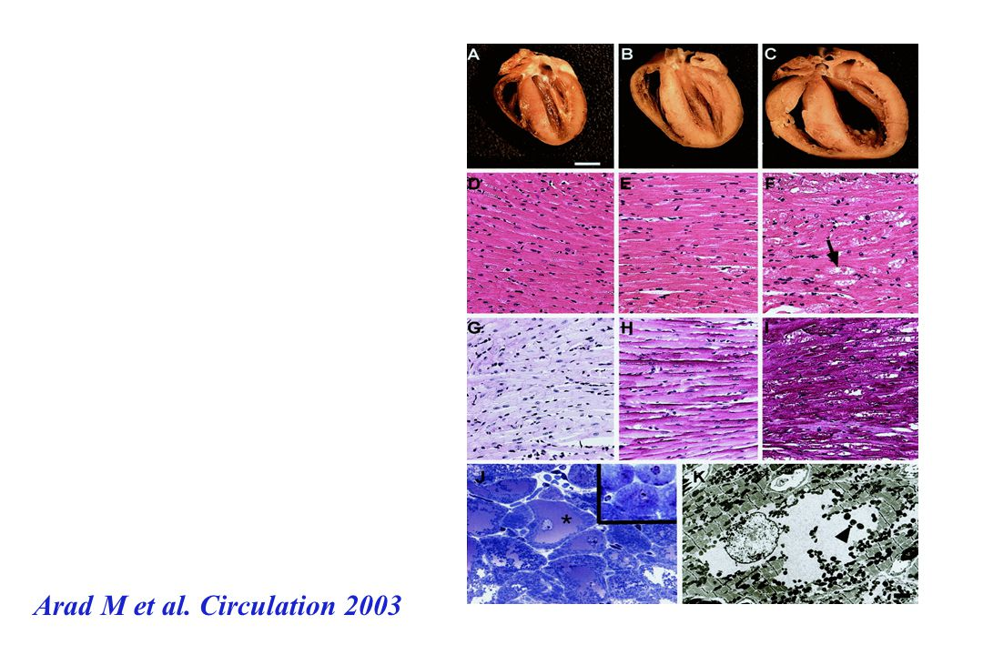 Arad M et al. Circulation 2003
