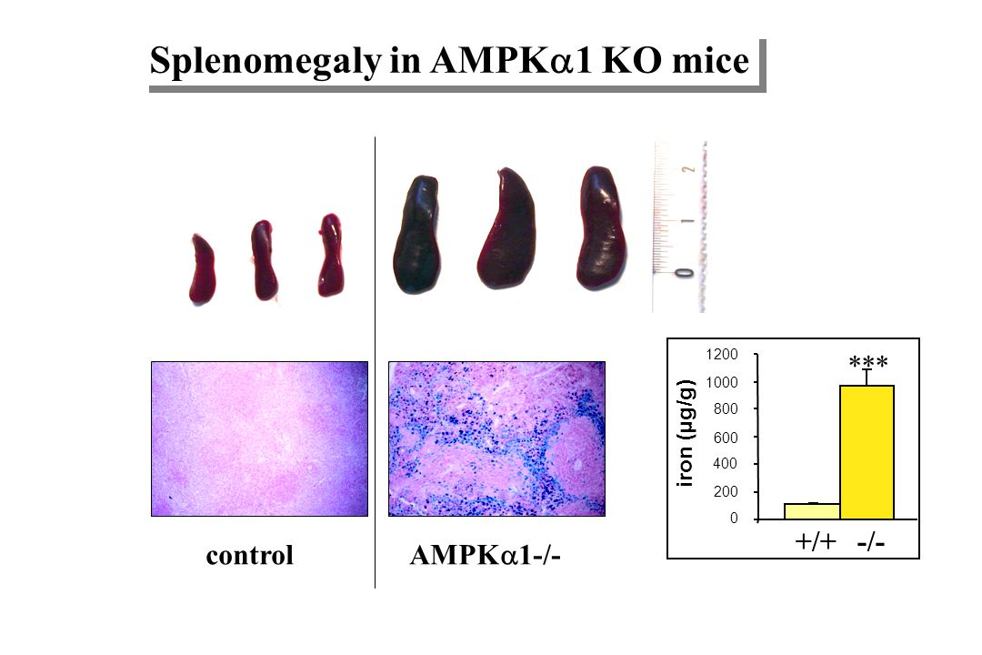 Splenomegaly in AMPK1 KO mice