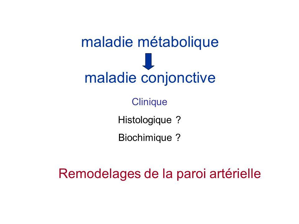 maladie métabolique maladie conjonctive