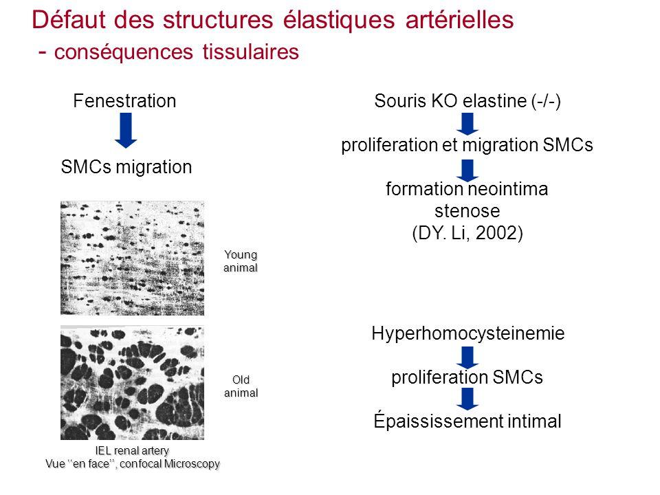 Défaut des structures élastiques artérielles