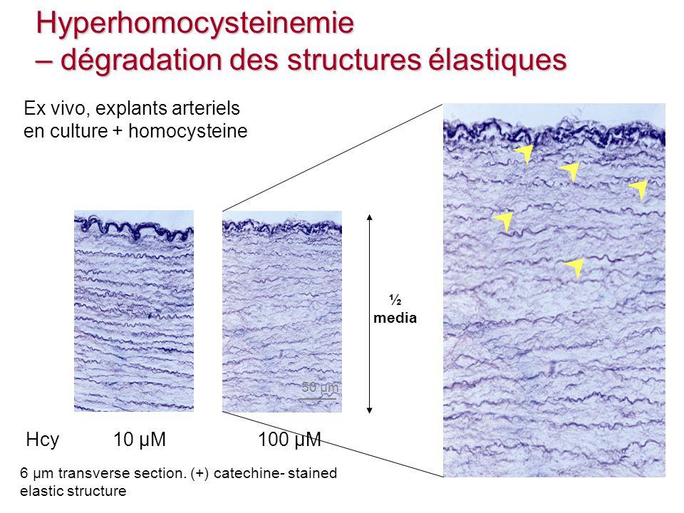 Hyperhomocysteinemie – dégradation des structures élastiques