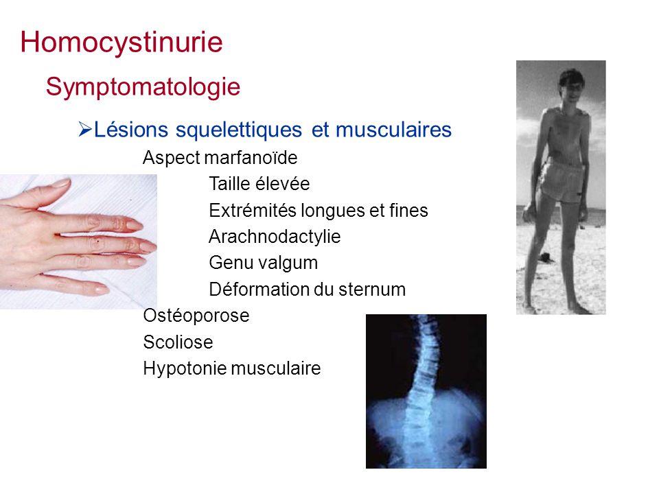 Homocystinurie Symptomatologie Lésions squelettiques et musculaires