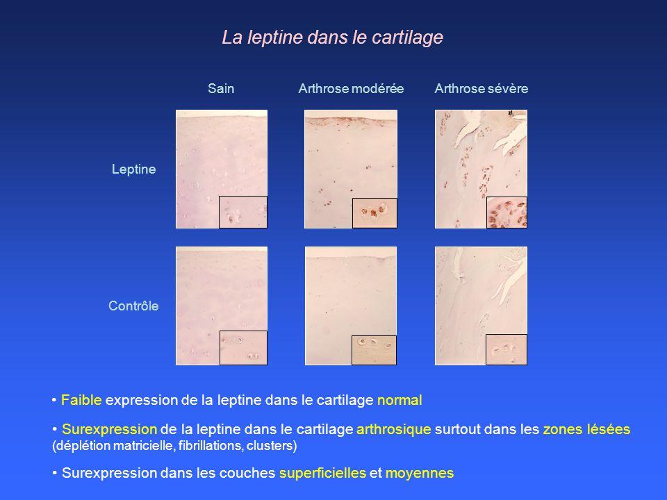 La leptine dans le cartilage