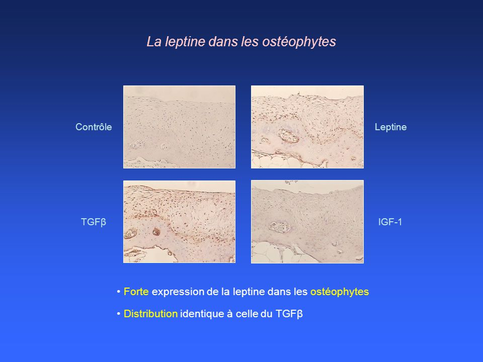 La leptine dans les ostéophytes
