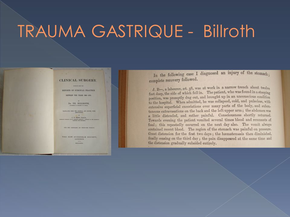 TRAUMA GASTRIQUE - Billroth