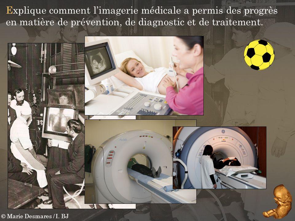 Explique comment l'imagerie médicale a permis des progrès en matière de prévention, de diagnostic et de traitement.