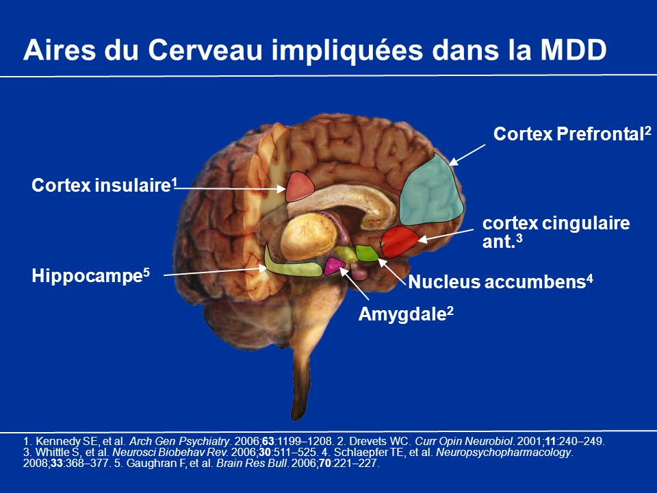 Aires du Cerveau impliquées dans la MDD