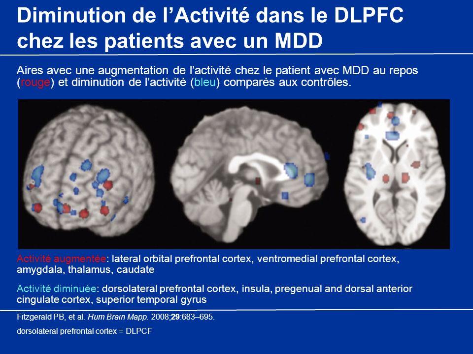 Diminution de l'Activité dans le DLPFC chez les patients avec un MDD