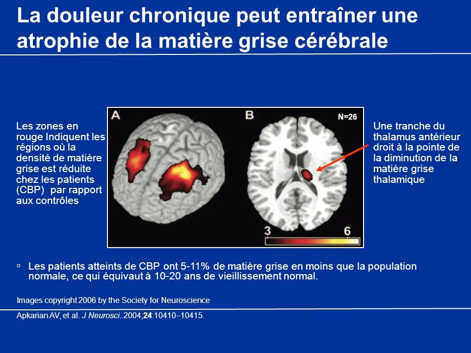 La douleur chronique peut entraîner une atrophie de la matière grise cérébrale