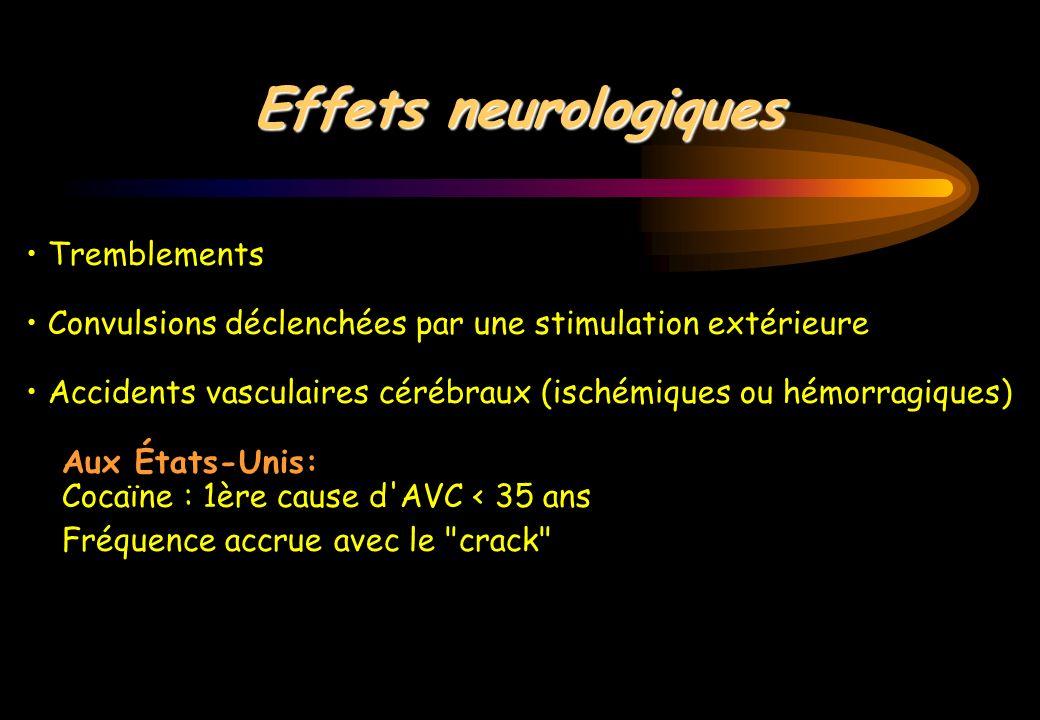 Effets neurologiques • Tremblements