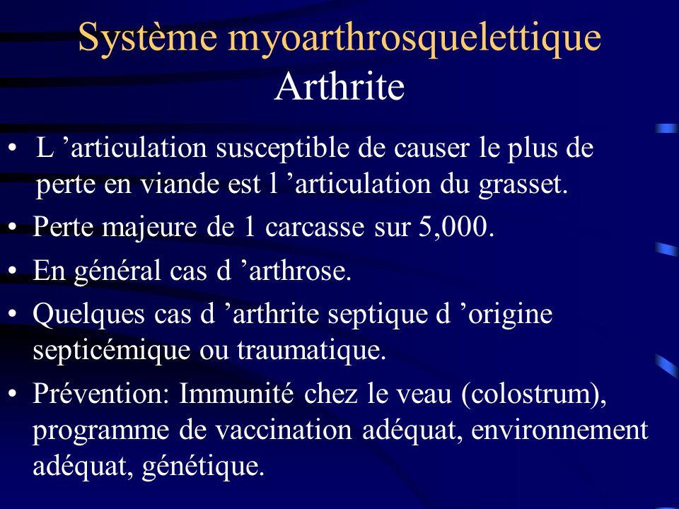 Système myoarthrosquelettique Arthrite