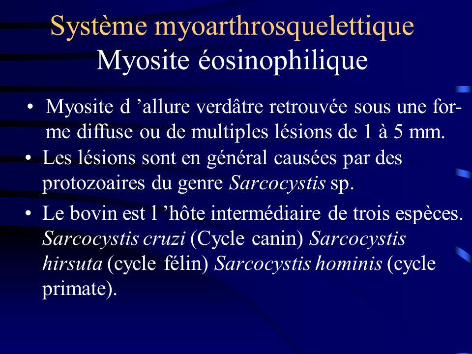 Système myoarthrosquelettique Myosite éosinophilique